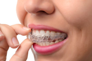 Invisalign – What You Need To Know