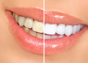 Secrets To Teeth Whitening