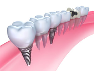 A Closer Look At Dental Implants