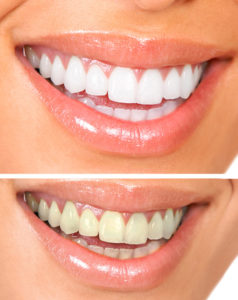 The Main Two Kinds Of Professional Teeth Whitening