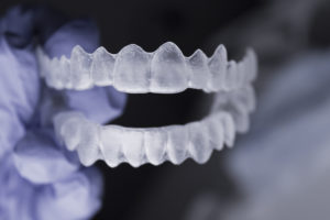The Many Benefits Of Straightening Your Teeth With Invisalign