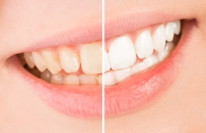 Should You Get Your Teeth Whitened Professionally?