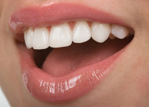 Who Are Porcelain Veneers For?
