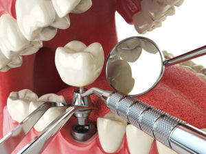 What To Expect From Dental Implants