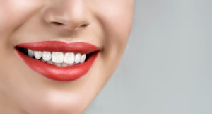 How Veneers Can Help Transform Your Smile