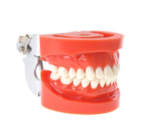 the-ins-and-outs-of-traditional-and-implant-dentures