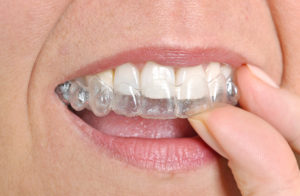 the-many-benefits-of-invisalign-to-adult-patients