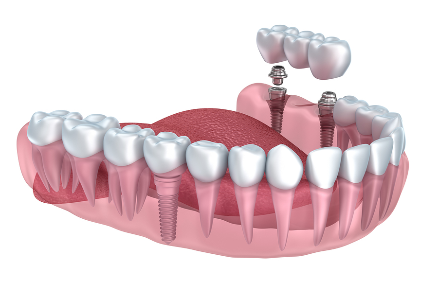 Consider Dental Implants As An Alternative To Traditional